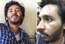 Abhay Mahajan Underwent a Plastic Surgery During Gachhi's Shoot!